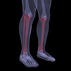 X-ray of human legs