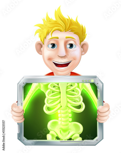 X-Ray Illustration