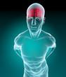 Uomo cervello raggi x