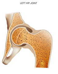 Hip joint, detailed medical illustration