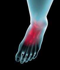 Piede dolore ossa raggi X caviglia