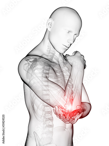 3d rendered medical illustration - painful elbow