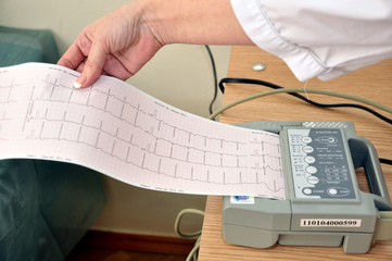 Миллиметровка с графиком сердечных ритмов пациента
