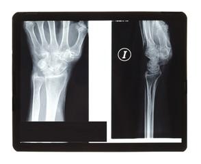 Wrist radiography