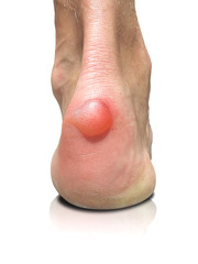 Blister on human heel