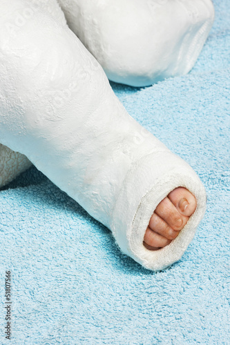 Baby boy's leg with bandage