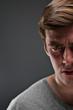 Caucasian Man Half Face Depression Portrtait