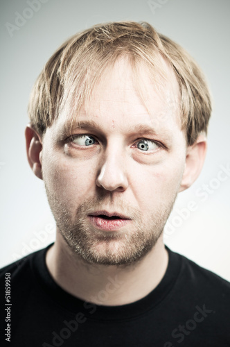 Caucasian Man Crossing His Eyes