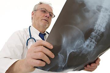 Radiologie - Observation d'une radio