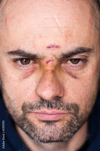 Injured man with black eyes