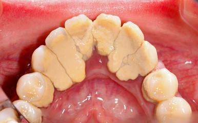 Tartar - go to the dentist