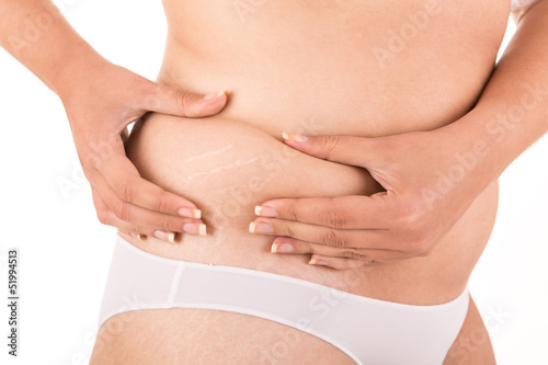 Woman showing her old stretch marks
