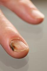 Erkrankter Fingernagel