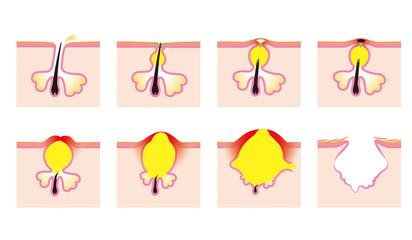 ニキビの種類と進行