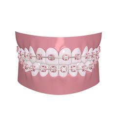 Pink Braces