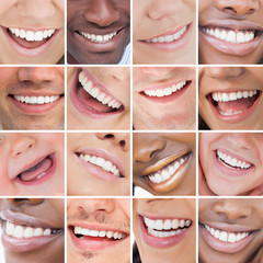 Collage of bright white smiles