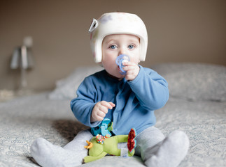 baby with helment for  Plagiocephaly