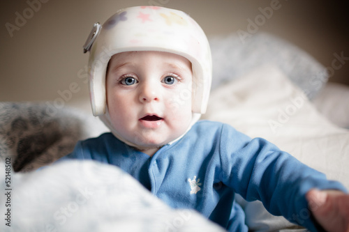baby with elment for  Plagiocephaly