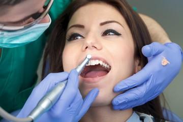 Professional dental brushing