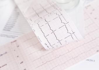 EKG heart rate control