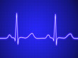 Electrocardiogram, ecg, graph, pulse tracing