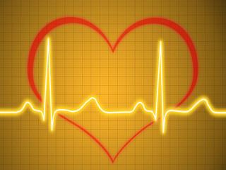 Electrocardiogram, ecg, graph, pulse tracing