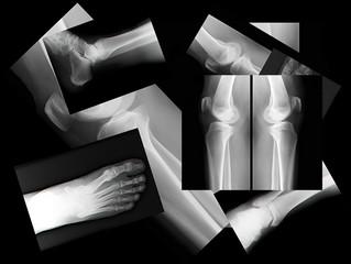 human leg bone X-rays