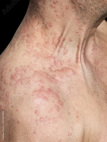 Man's shoulder covered with skin Allergy