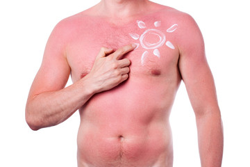 Man with a sunburn