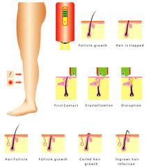Epilation. Ingrown hair infection