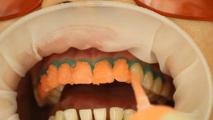 Teeth Whitening. Application of whitening gel to the teeth.
