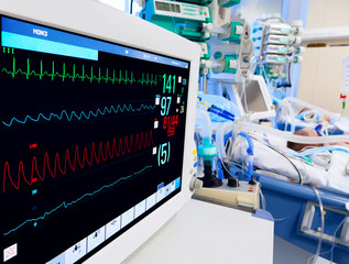 Pediatric ICU with ECG monitor