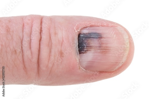 Human finger with black bruised nail isolated