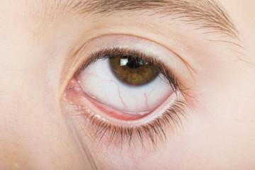 Human eye wide open