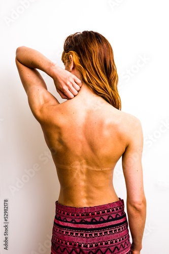 Young woman touching her sunburned neck