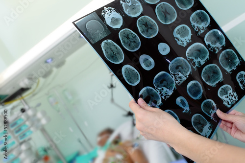 Tomography image in the hands of a woman doctor in a hospital ne