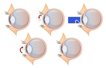 Laser eye correction