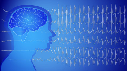 Medical Epilepsie Wallpaper blue