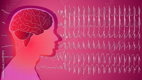 Epilepsie Patient