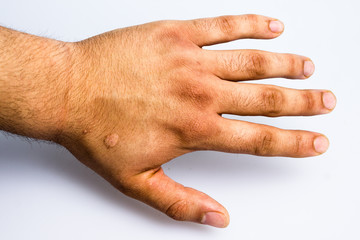 Man's hand with scar from cigarette burn