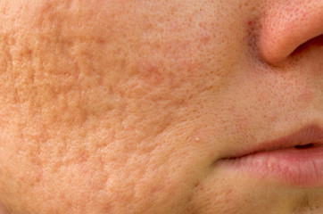 problematic skin with acne scars