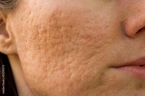 acne scars - 53210370