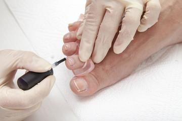 Photos of foot nail varnishing process, series of photos