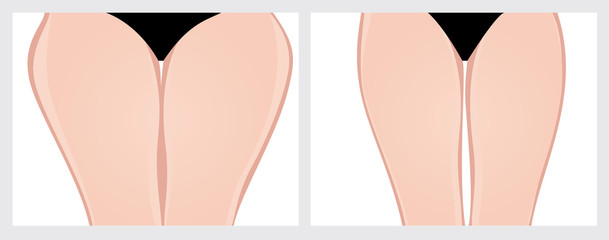 Thighs. Vector Illustration