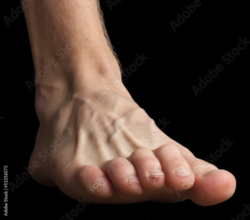 Foot with broken skin on toes