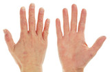 Eczema Dermatitis on Front and Back of Pair of Hands