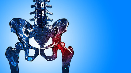 Skeleton hip pain section