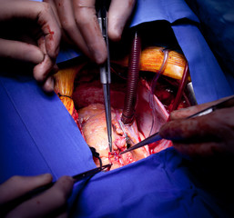 Cardiac surgery heart operation