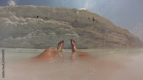 Mans lags in calcium bath, Pamukkale