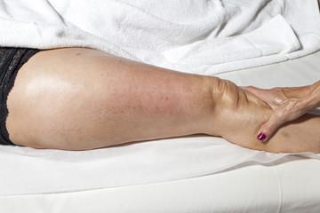 Spa treatment, beauty and anti cellulite massage